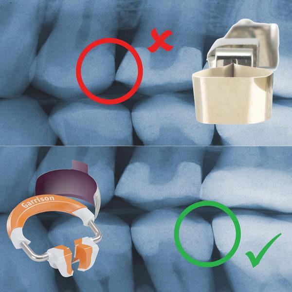 Čemu služe matrice i zašto nam je bitan kontakt između zuba?
